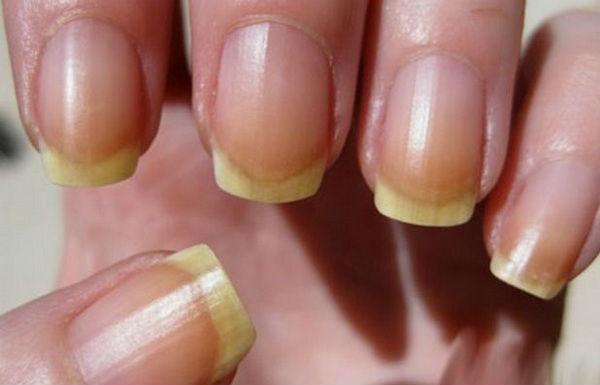 Как быстро отбелить ногти