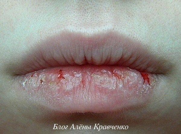 Трещины на губах