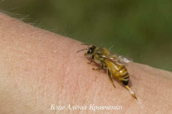 Укусы осы или пчелы