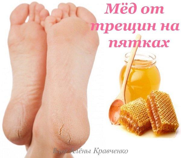 Мёд для пяток