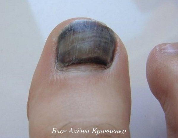 Грибок ногтя на большом пальце ноги