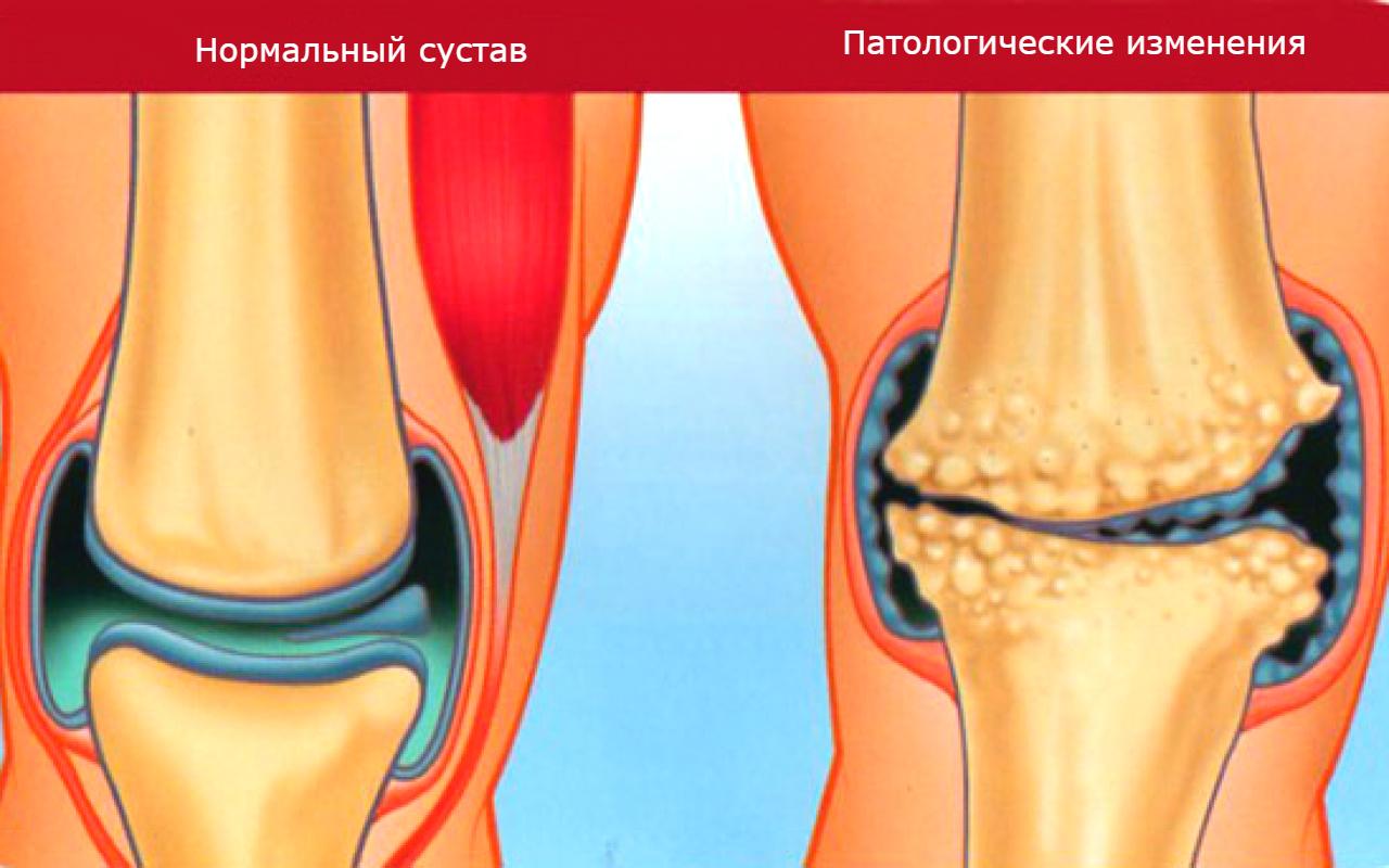 Схематичное изображение нормы и патологии в суставе