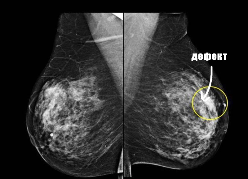 Маммография груди с дефектом